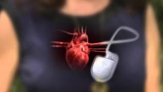 Defibrillator-Pacemaker: What