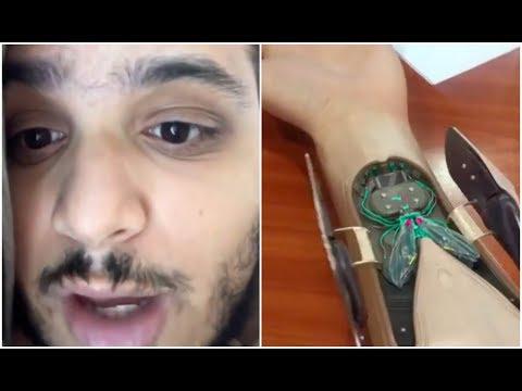 Still Dont Believe It? Nessly Rapper With Autotune Implant Explains