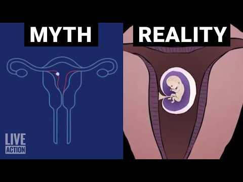 Medical abortion inaccurately described by Planned Parenthood
