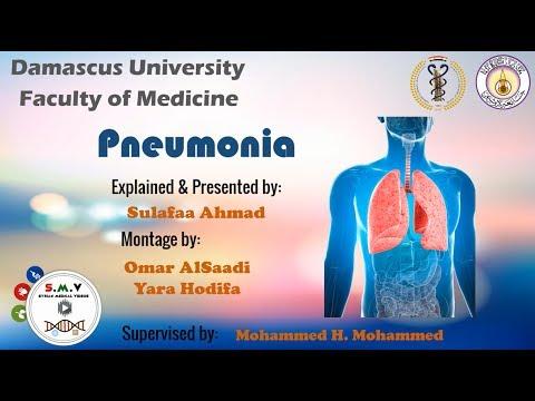 ذات الرئة Pneumonia - جامعة دمشق - S.M.V