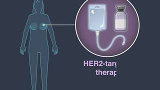 Reducing Risk in Residual Breast Cancer