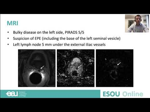 Clinical case -