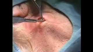 Kyste épidermique de la région cervicale