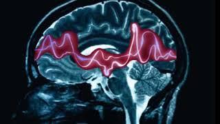 Epilepsi Hastası Nelere Dikkat Etmelidir, Ne Yapmalıdır?