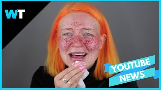 Permanent FRECKLE Beauty FAIL Goes VIRAL