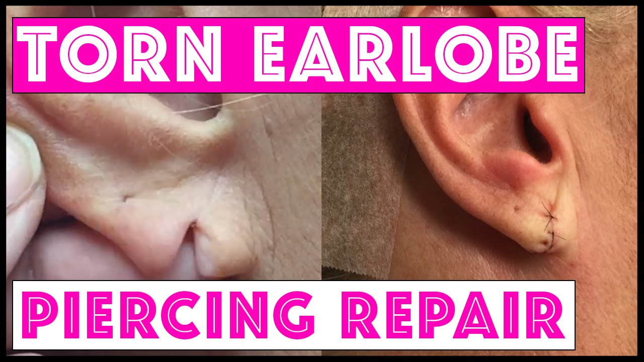 hight resolution of surgical repair of a torn earlobe
