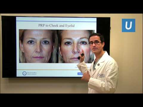 Platelet Rich Plasma (PRP) for Facial Rejuvenation and Hair Growth  | UCLA Heck and Neck Surgery