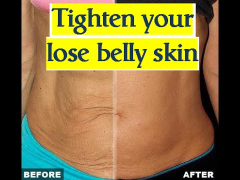 Skin tightening after losing belly fat - loose skin after ...