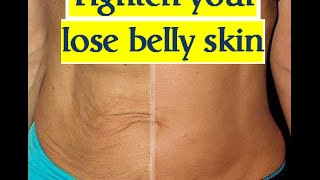 Skin tightening after losing belly fat - loose skin after weight loss , microdermabrasion