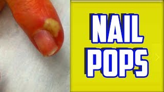 Top 4 Paronychia & Nail Infections of All Time!