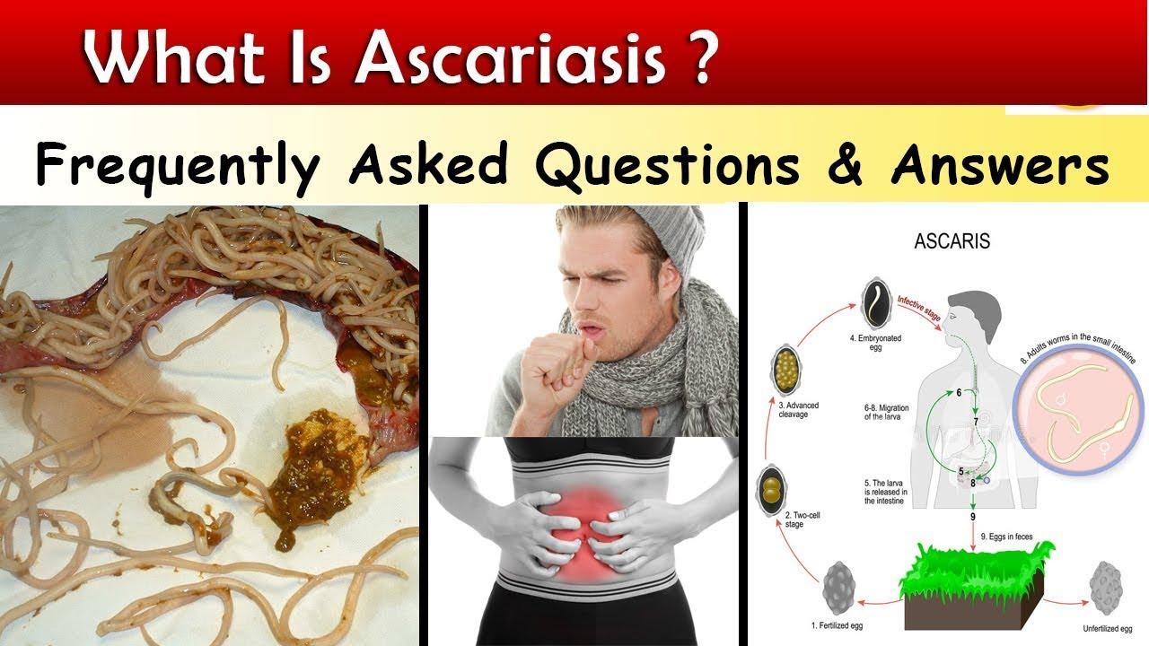 férgek aszcariasis kezelése