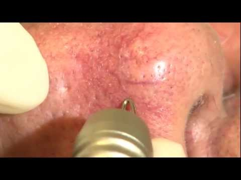 Dual Yellow laser Facial telangiectasia - de NORSELD / Thierry Rougeron /  th_rougeron@yahoo fr