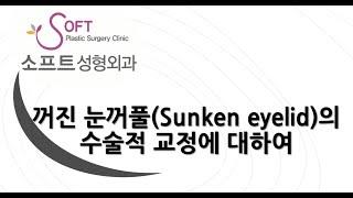 꺼진 눈꺼풀(Sunken eyelid) 수술적 교정! …