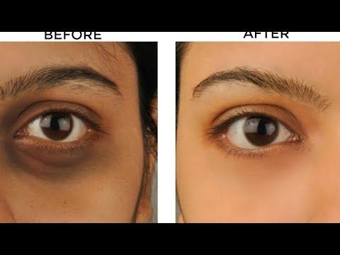 How to Remove Dark Circles|| Naturally at home in 1 week ...