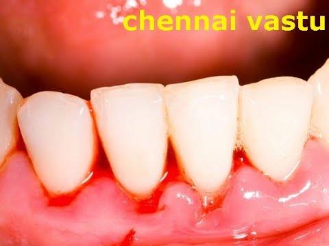 பல் ஈறுகளில் உண்டாகும் நோய்களுக்கு தீர்வு   disease of teeth Vastu Remedies  