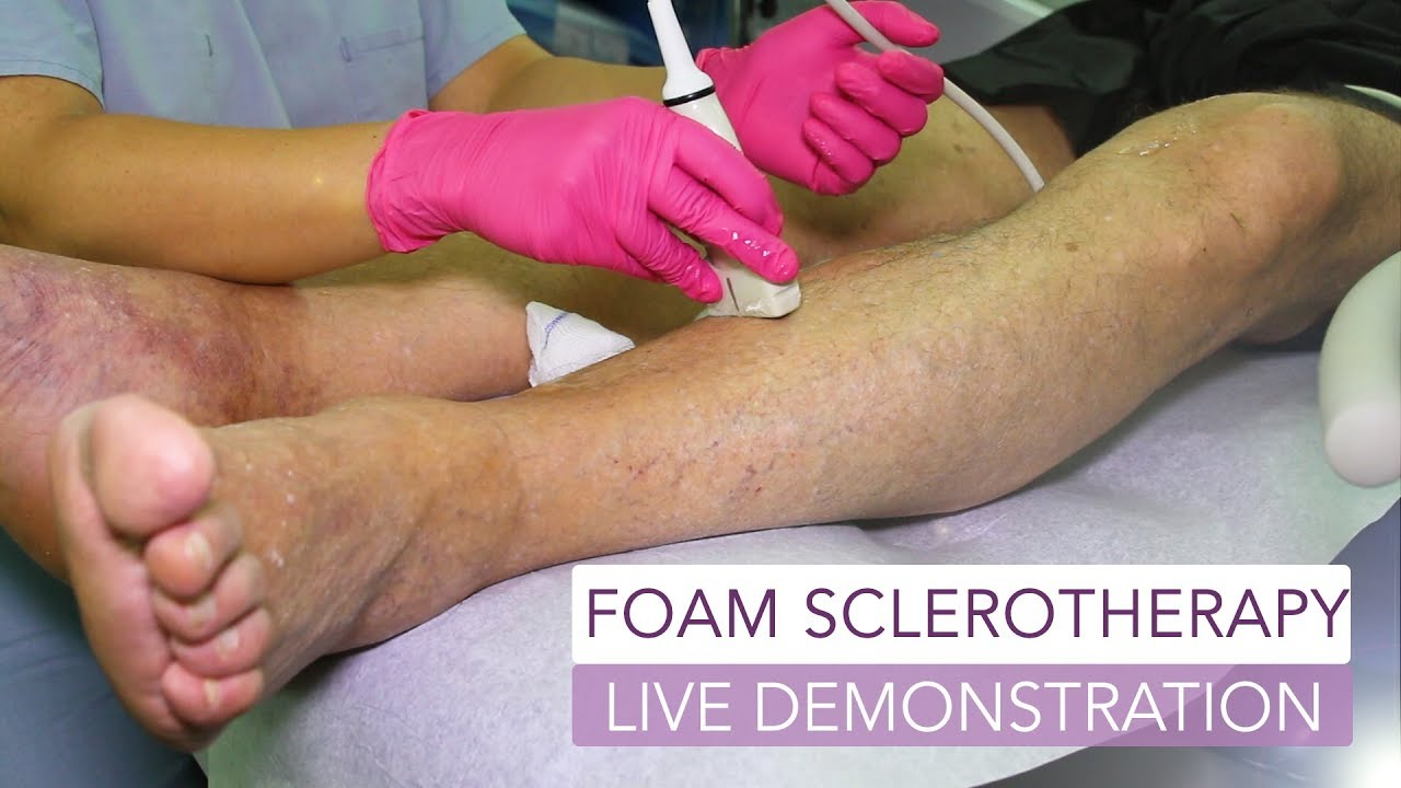 Sclerotherapy | Best Varicose Veins Treatment | Vein Treatment Center