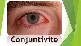 Olhos inchaço provoca vermelhidão sob os