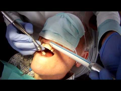 "Space #9 IMPLANT RECONTRUCTION Carlson Bridge® ""Winged Pontic"" Tooth Replacement Systems"