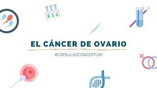 El cáncer de ovario | Cápsulas Conceptum