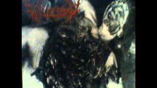 VULVECTOMY-FORNICATE IN PUTREFACTION