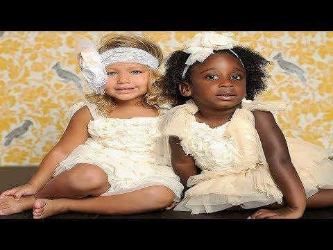 Mutter gebar Zwillinge mit unterschiedlicher Hautfarbe - So sehen sie heute aus...