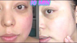ROSACEA Y ACNE   REMEDIO NATURAL  AL INSTANTE! /   Acne  Rosacea Skin Care Routine! 10 min