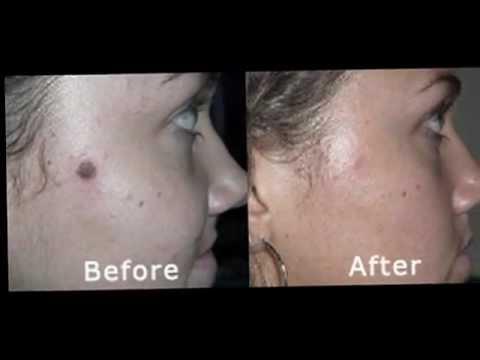 Facial flat wart removal