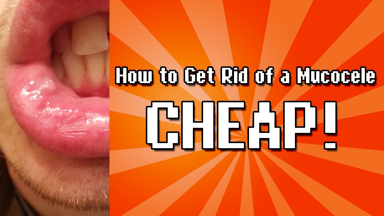 How To Get Rid Of A Mucocele Cheap