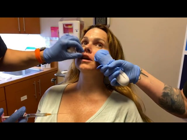 Dallas Live Kybella Jowl Reduction, Botox Jaw Reduction, & Lip Fillers