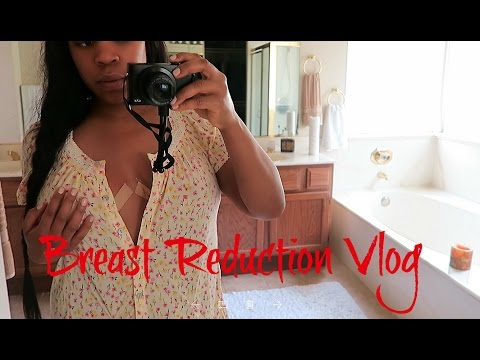 Breast Reduction Vlog