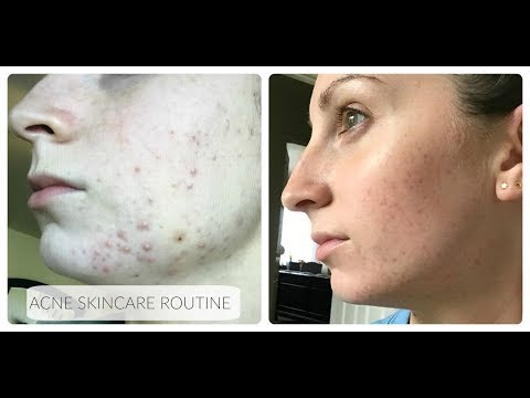 hqdefault - Dr Hauschka For Acne