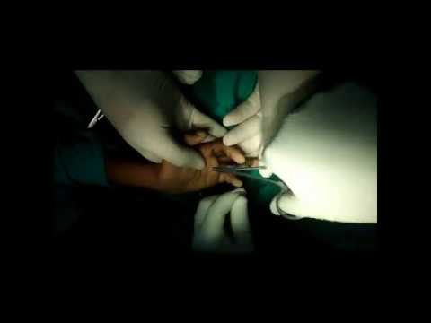 Post -Burn Hand Deformity Correction Surgery in Patna, Bihar