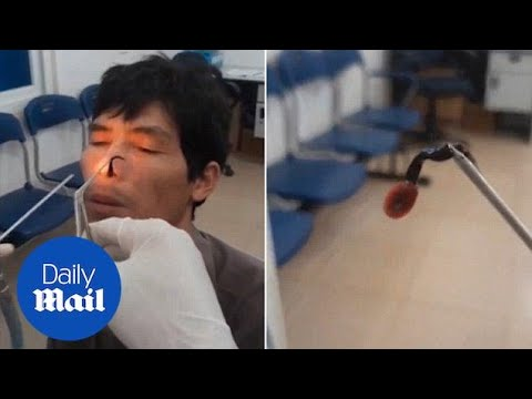 Stomach-churning Moment Doctor Removes Live Leech From Man's Nose