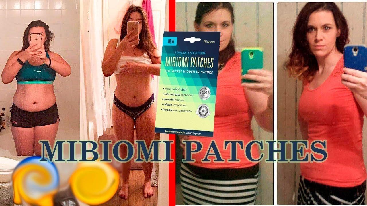 mibiomi patches gyakori kérdések)