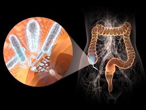 Причины возникновения кишечного кровотечения