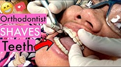 "BRACES VLOG: My Orthodontist SHAVED My Teeth! ""Incisal Edge Contouring"" for a more perfect smile"