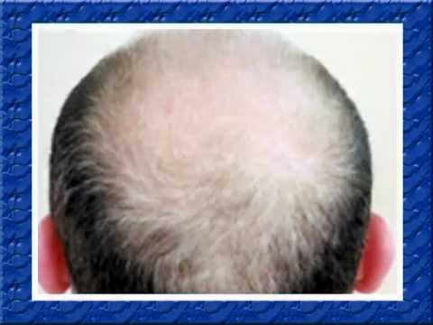 Випадання волосся у жінок: причини і вирішення проблеми
