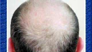 видео Причини випадіння волосся