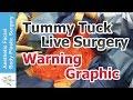Tummy Tuck Secrets Revealed & Live Surgery - Plastic Surgery Video