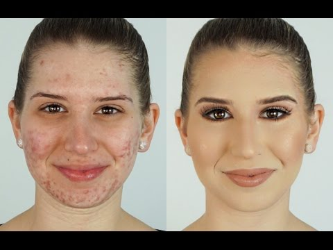 How To Correct & Conceal Acne ⎮Heidi Hamoud