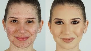 One of Heidi Hamoud's most viewed videos: How To Correct & Conceal Acne ⎮Heidi Hamoud