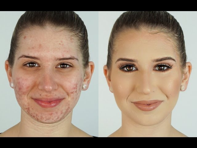 How To Correct & Conceal Acne ⎮Heidi Hamoud