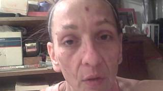 Face of Morgellons Disease - Getting the parasites to leave your skin within minutes!