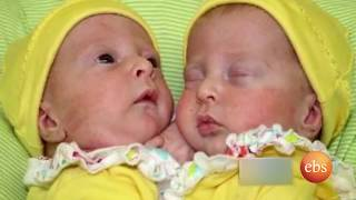 New Life: Conjoined Twins Complicated Surgery
