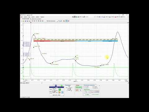 Диагностика ГРМ с помощью мотор тестера