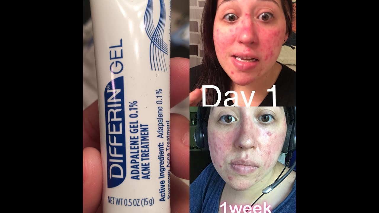 Differin Gel Acne Treatment Part 1 Youtube