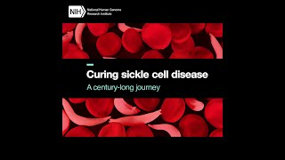 Curing sickle cell disease: A century-long journey
