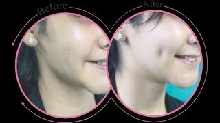 Video 3 Ways to Get Dimples Naturally download MP3, 3GP, MP4, WEBM, AVI, FLV Oktober 2017