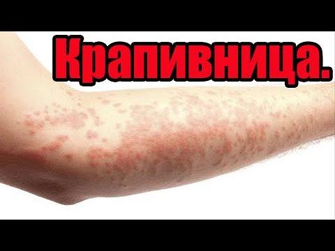 Лечение крапивницы.Аллергия.Личный успешный опыт.
