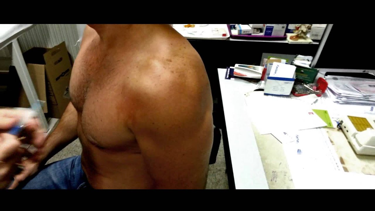 steroid shot in shoulder hurts